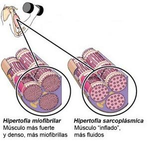 tipos hipertrofia